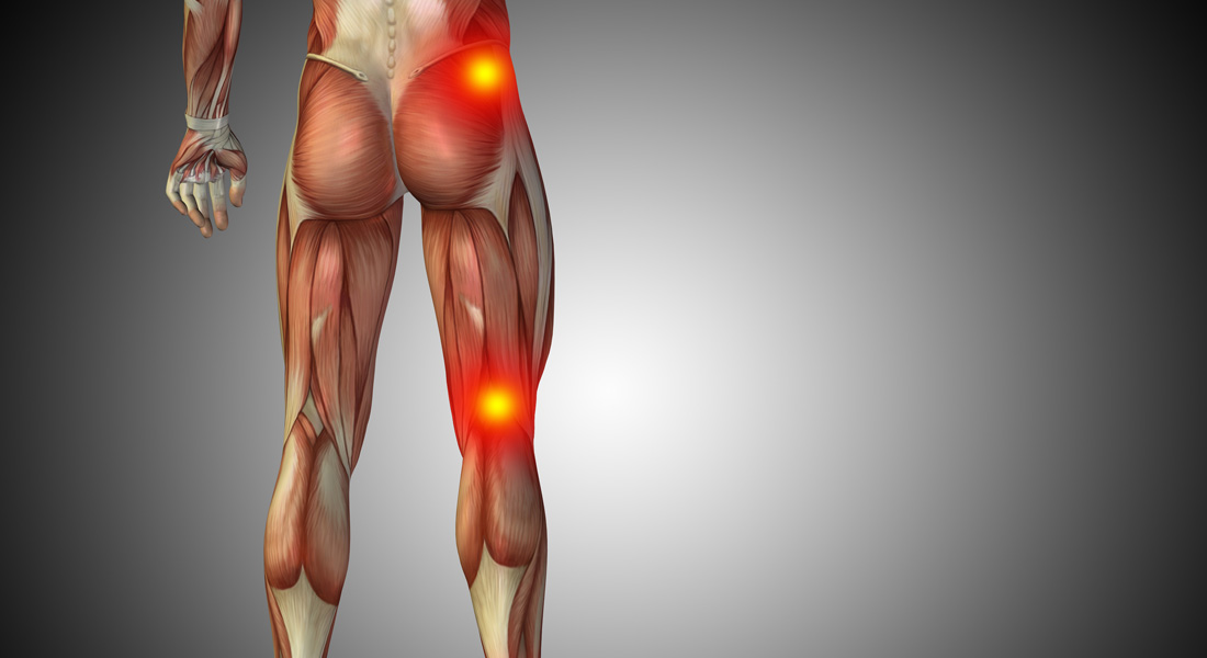 Most People Won't Ever Be Nice At The Sciatic Nerve